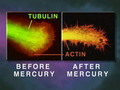 How Mercury Causes Brain Neuron Degeneration