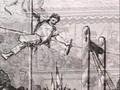 33 Anästhesie - Horace Wells, William Morton, James Simpson