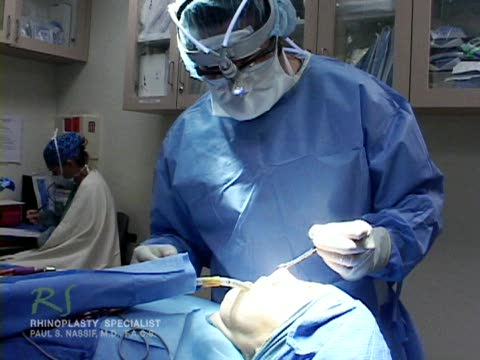 Nose Surgery Fracturing Nasal Bone  - Closed Rhinoplasty