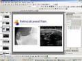 AMLLC - Podiatric Needle Procedure using Diagnostic Ultrasound Guidance