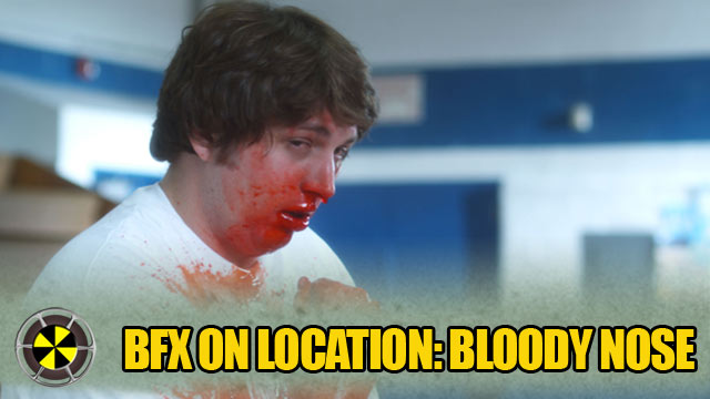 BFX On Location: Extreme Nose Bleed