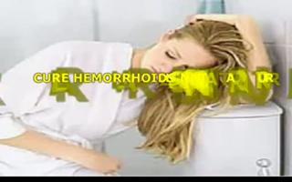 Top Tips To Cure Hemorrhoid